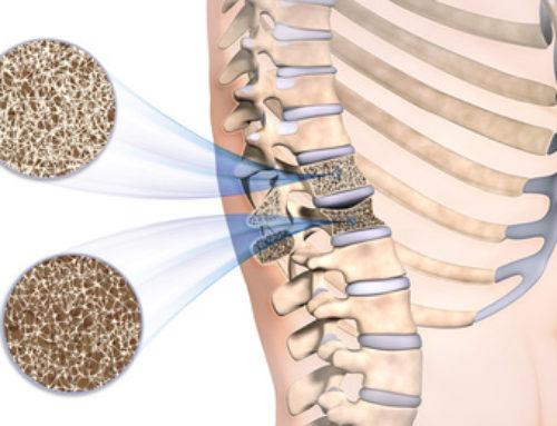 Osteoporosi: il 18 luglio da Nuova Medicina densitometria e visita specialistica a prezzo speciale
