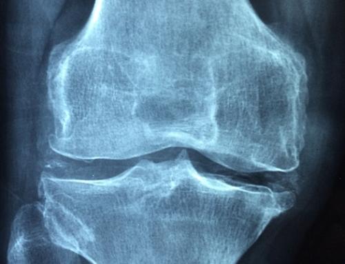 Osteoporosi: l'11 settembre visita ed esame con il dottor Sambiasi